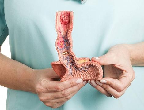 Cirurgia para tratamento de refluxo